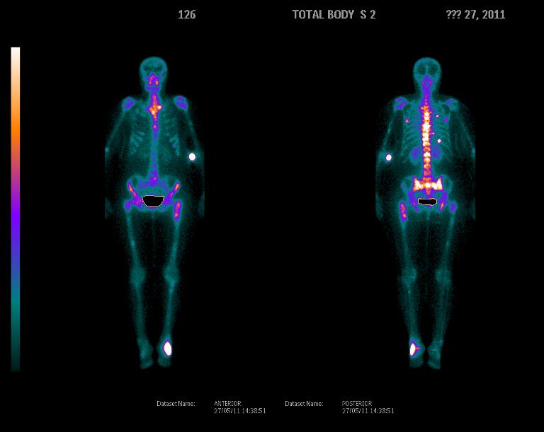 Ядерная медицина | Остеосцинтиграфия
