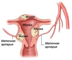 http://www.innovacia.com.ua/userfiles/image/mioma_matki.jpg