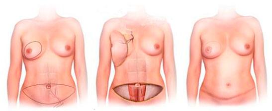 После операции груди отзывы рак