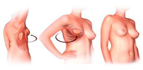 Видео трасексуалов о перации груди